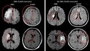AVC (acidente vascular cerebral isquêmico).