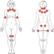 Pontos dolorosos (tender points) em paciente com fibromialgia.